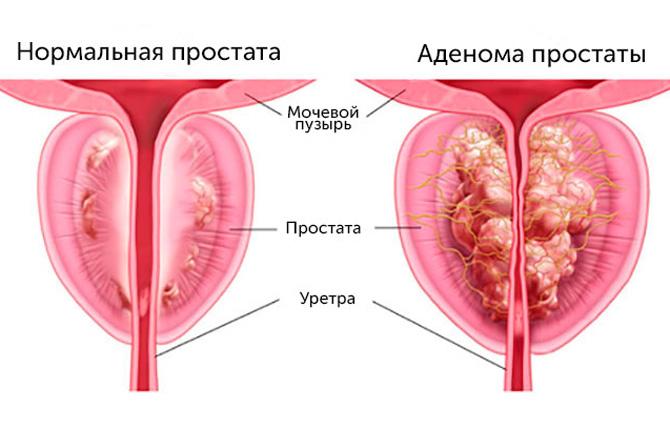 Простата в норме и аденома