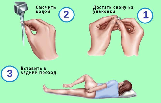 Инструкция по применению суппозиторий