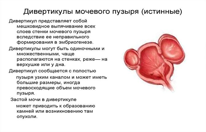 Дивертикулы мочевого пузыря
