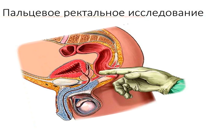 Пальцевое ректальное исследование
