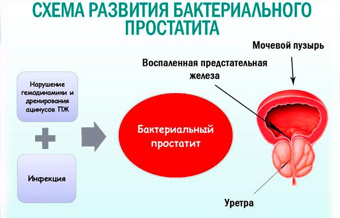 Развитие бактериального простатита
